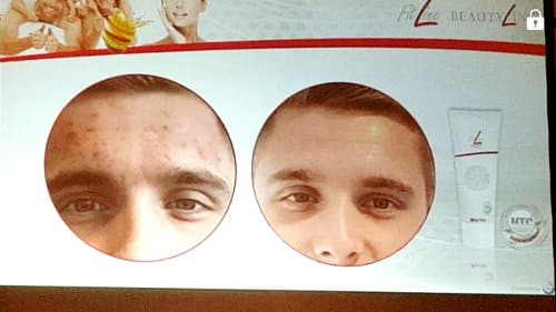 fitline med clear skin opinioni